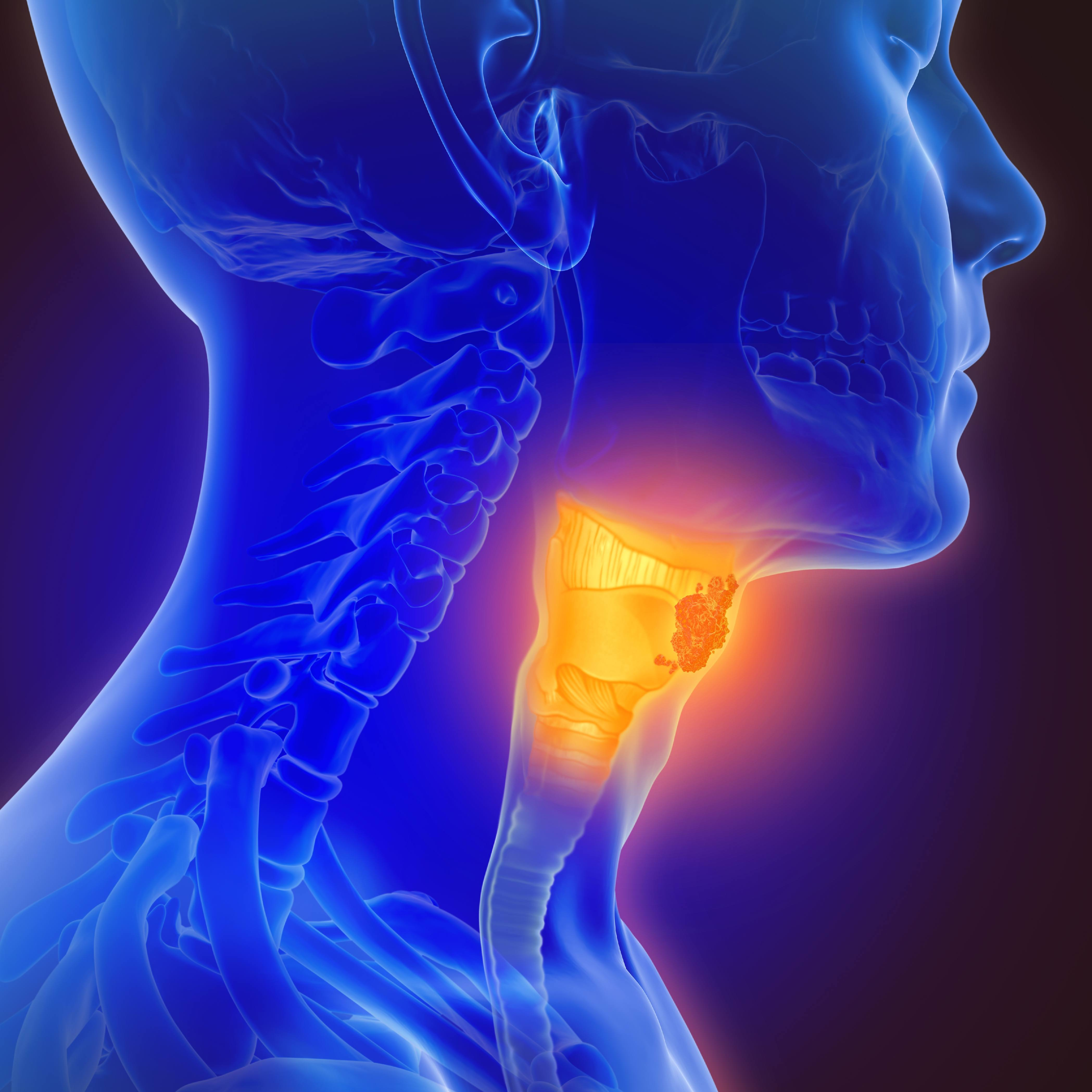 3D graphic image of person with HPV associated oropharynx cancer